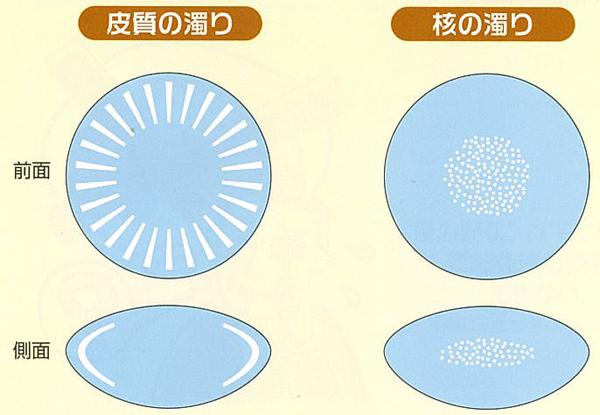 水晶体の濁り方と症状