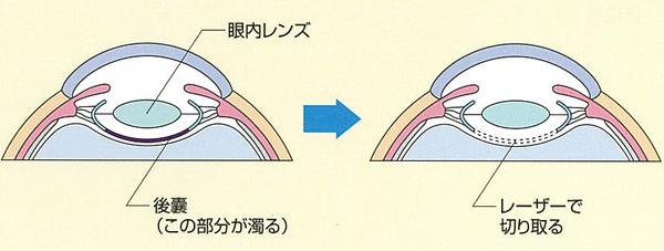 後発白内障のレーザー治療