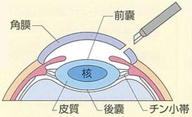 眼球を切開し、水晶体の前囊を切り取る。