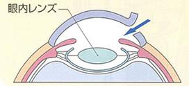 残した後囊の中に、眼内レンズを挿入する。