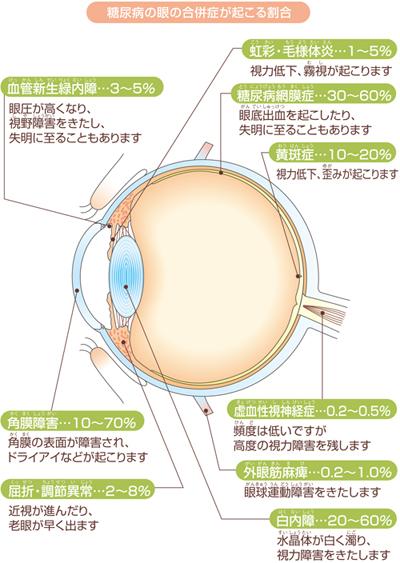 糖尿病の眼の合併症