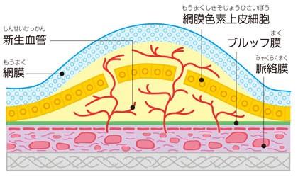 脈絡膜新生血管とは
