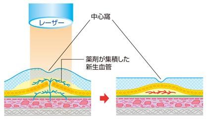光線力学的療法(PDT)