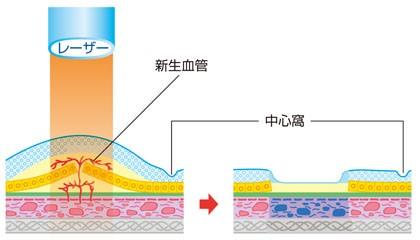 レーザー光凝固術